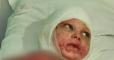 В Первомайске родители бросили мальчика, пережившего кому