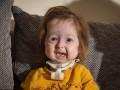 Мутация превратила двухлетнюю девочку в старушку
