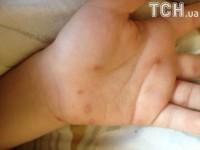 В киевском детсаду дети заразились вирусом Коксаки - родители