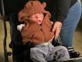 В Техасе выписали мальчика, родившегося без кожи