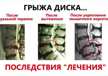 Санатории свердловской области с лечением в гинекологии